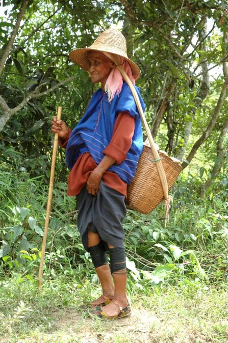 An elderly Kunge woman with bound calves