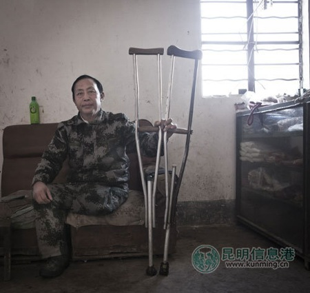 Yang Zhuasao, a villager disabled by a land mine